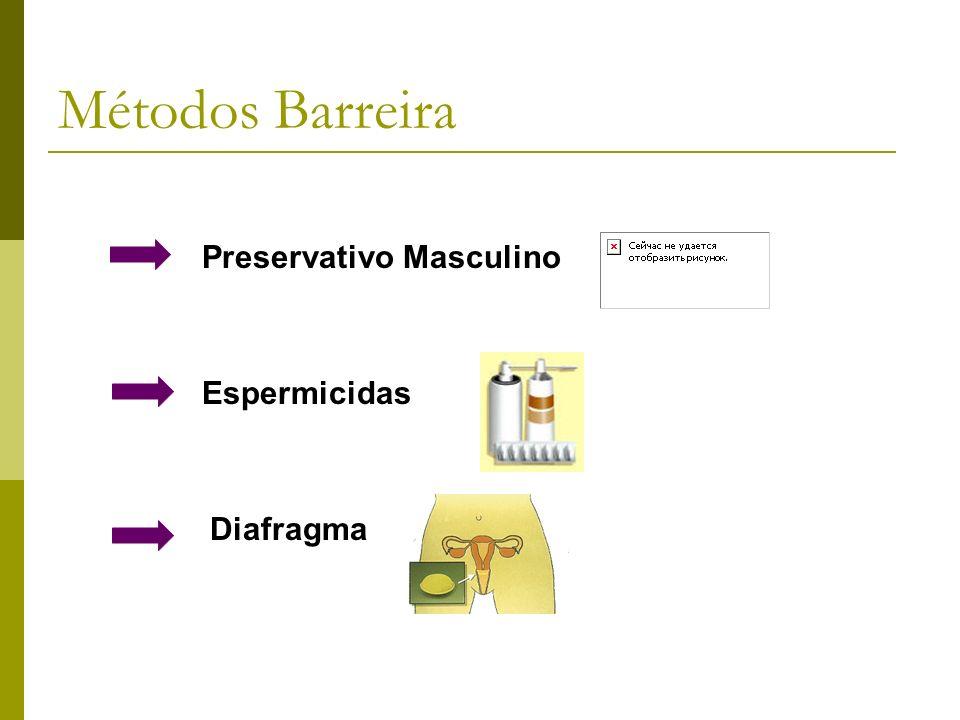 Métodos Barreira Preservativo Masculino Espermicidas Diafragma