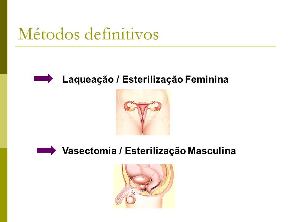 Métodos definitivos Laqueação / Esterilização Feminina