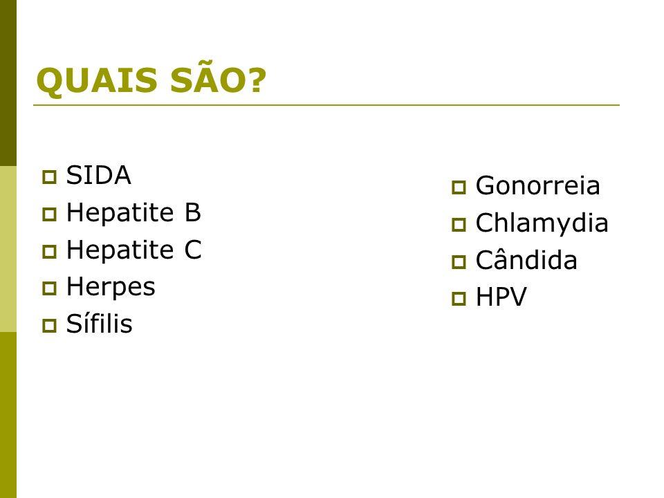 QUAIS SÃO SIDA Gonorreia Hepatite B Chlamydia Hepatite C Cândida