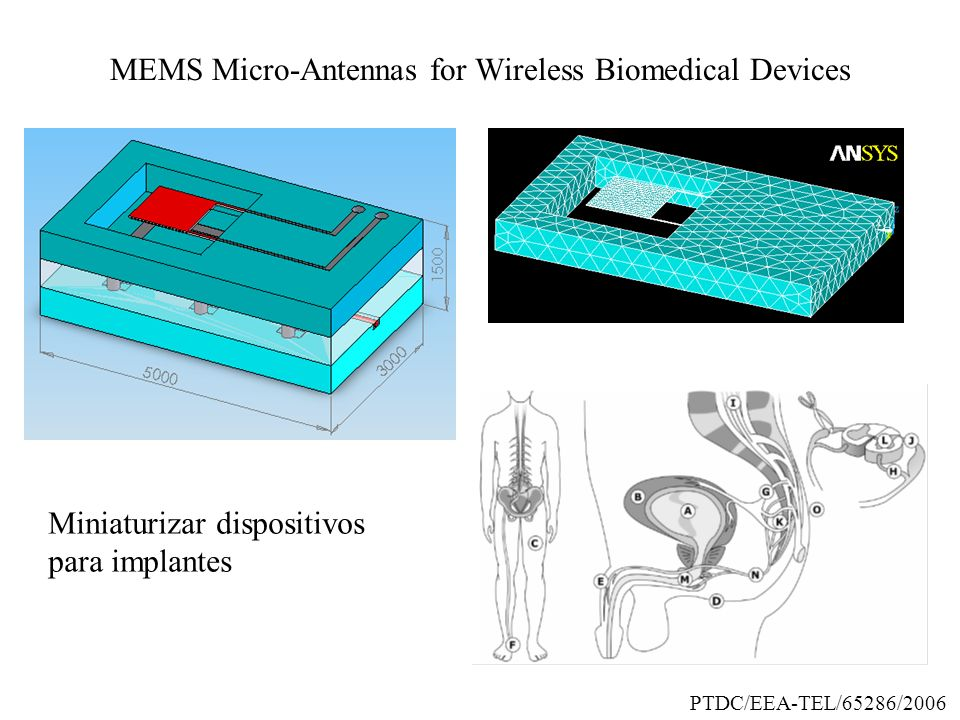 MEMS Micro-Antennas for Wireless Biomedical Devices