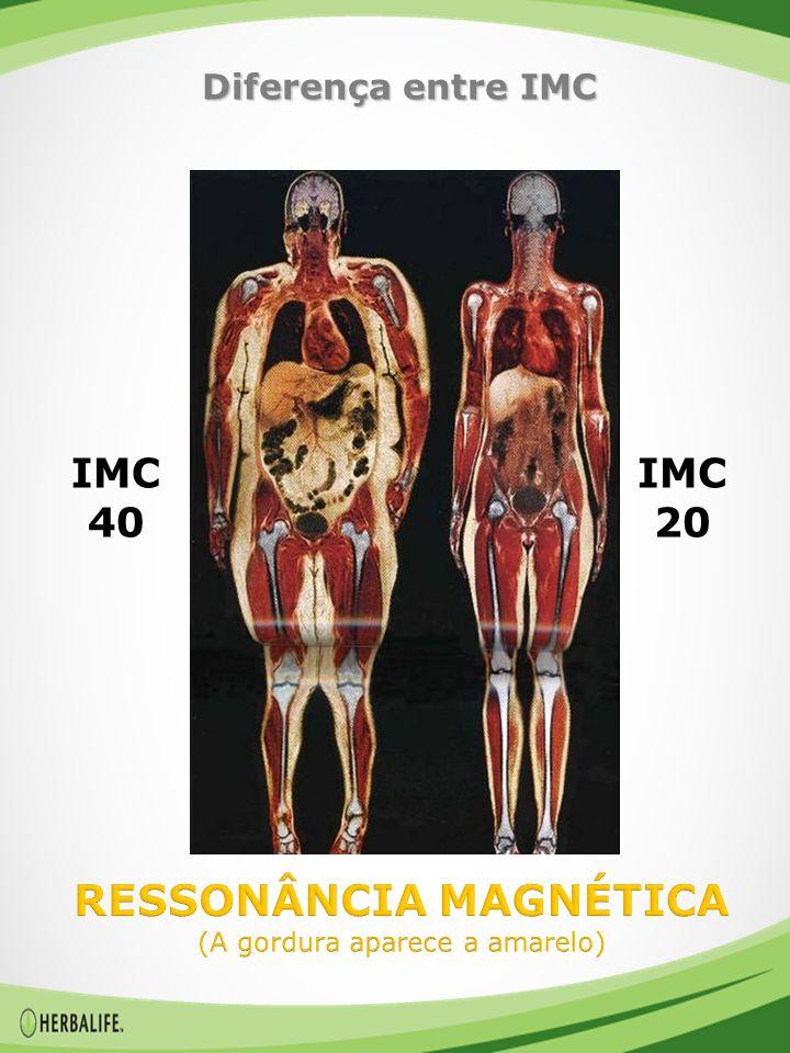 RESSONÂNCIA MAGNÉTICA (A gordura aparece a amarelo)