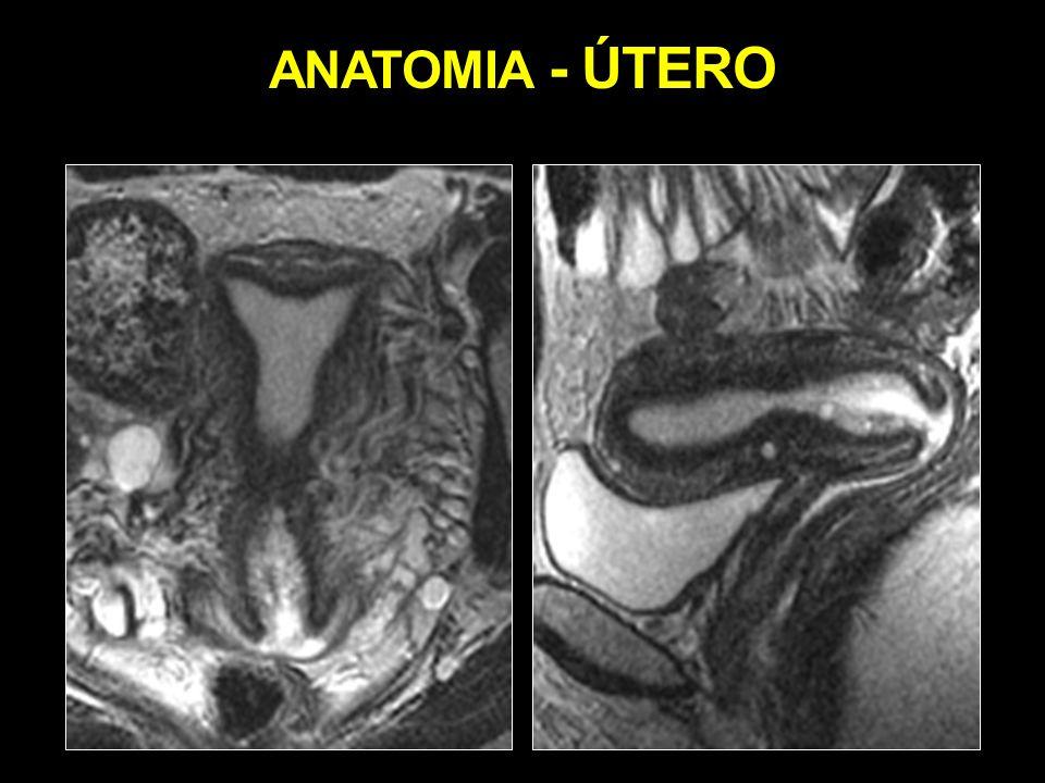 Perfecto Anatomía Normal Del útero Regalo - Anatomía de Las ...