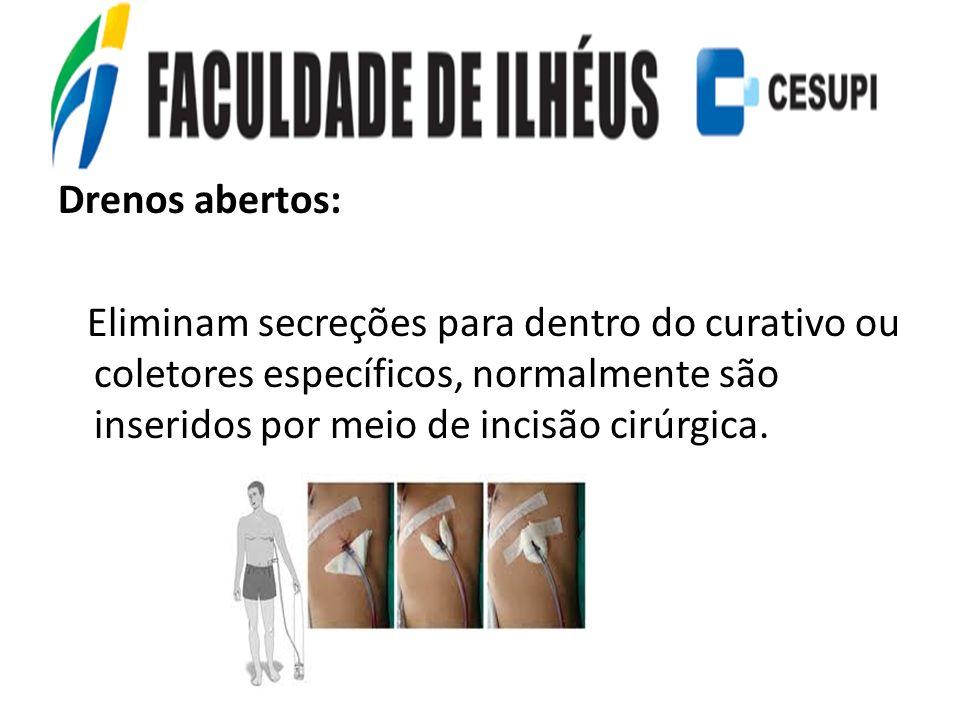 Drenos abertos: Eliminam secreções para dentro do curativo ou coletores específicos, normalmente são inseridos por meio de incisão cirúrgica.