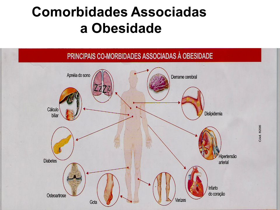 Comorbidades Associadas a Obesidade