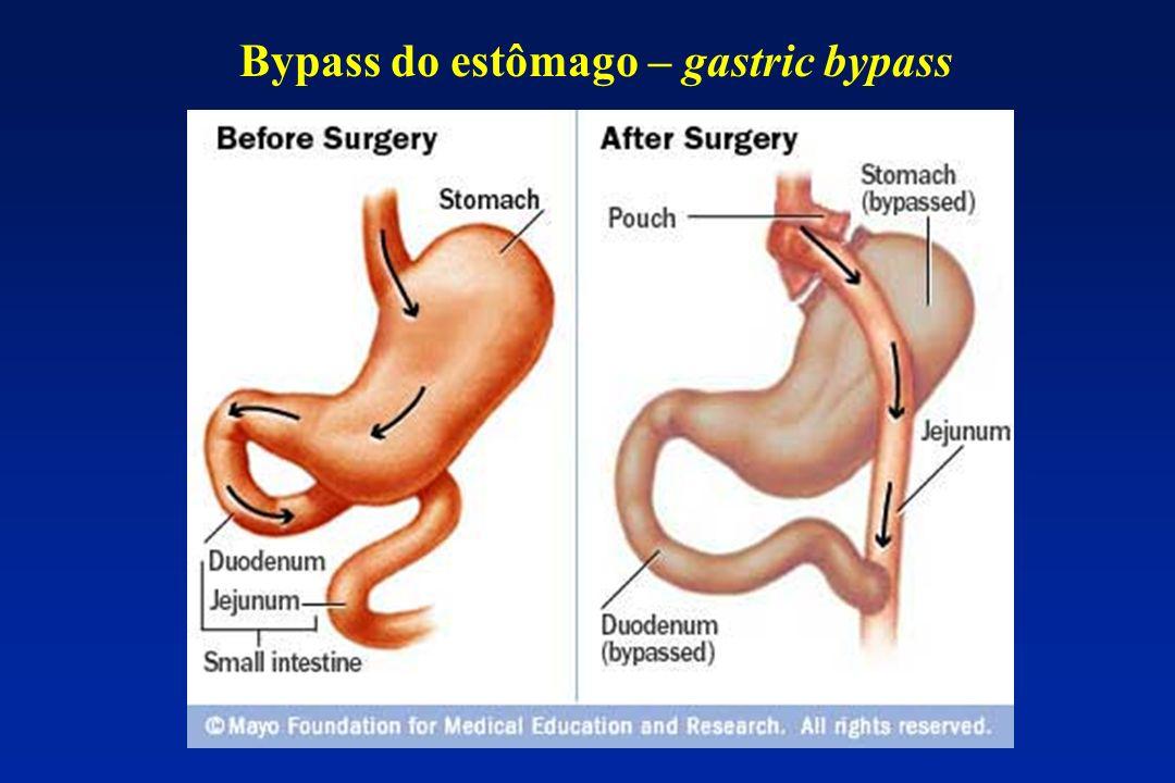 Bypass do estômago – gastric bypass