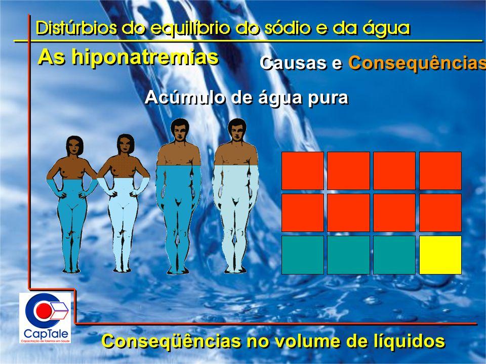 As hiponatremias Causas e Consequências Acúmulo de água pura