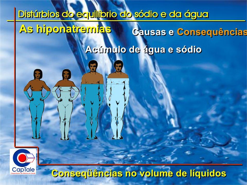 As hiponatremias Causas e Consequências Acúmulo de água e sódio
