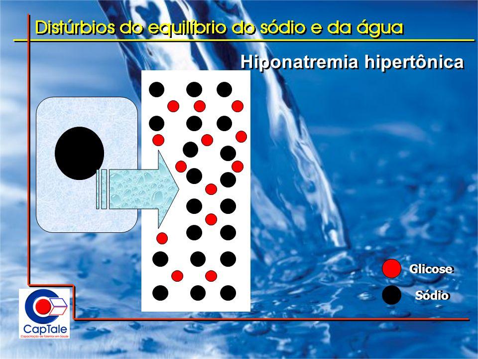 Hiponatremia hipertônica