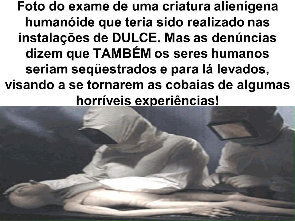 Foto do exame de uma criatura alienígena humanóide que teria sido realizado nas instalações de DULCE.