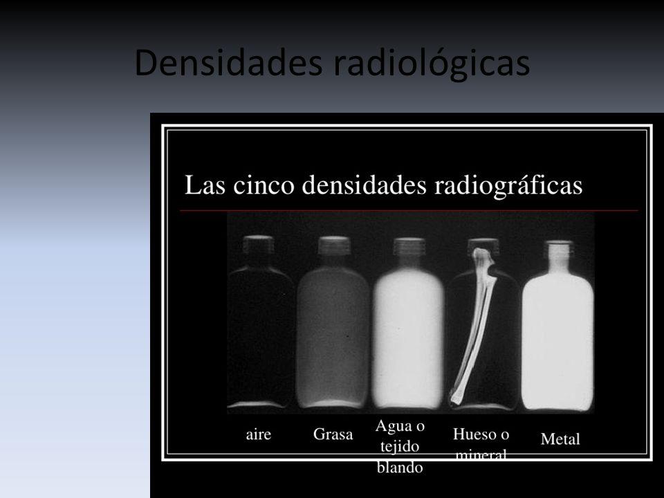 Hist 211 Ria Do Raio X Densidades E Incid 202 Ncias Ppt