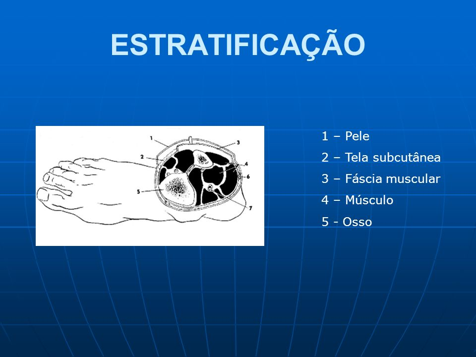ESTRATIFICAÇÃO 1 – Pele 2 – Tela subcutânea 3 – Fáscia muscular