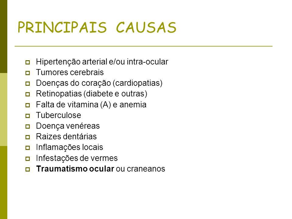 PRINCIPAIS CAUSAS Hipertenção arterial e/ou intra-ocular