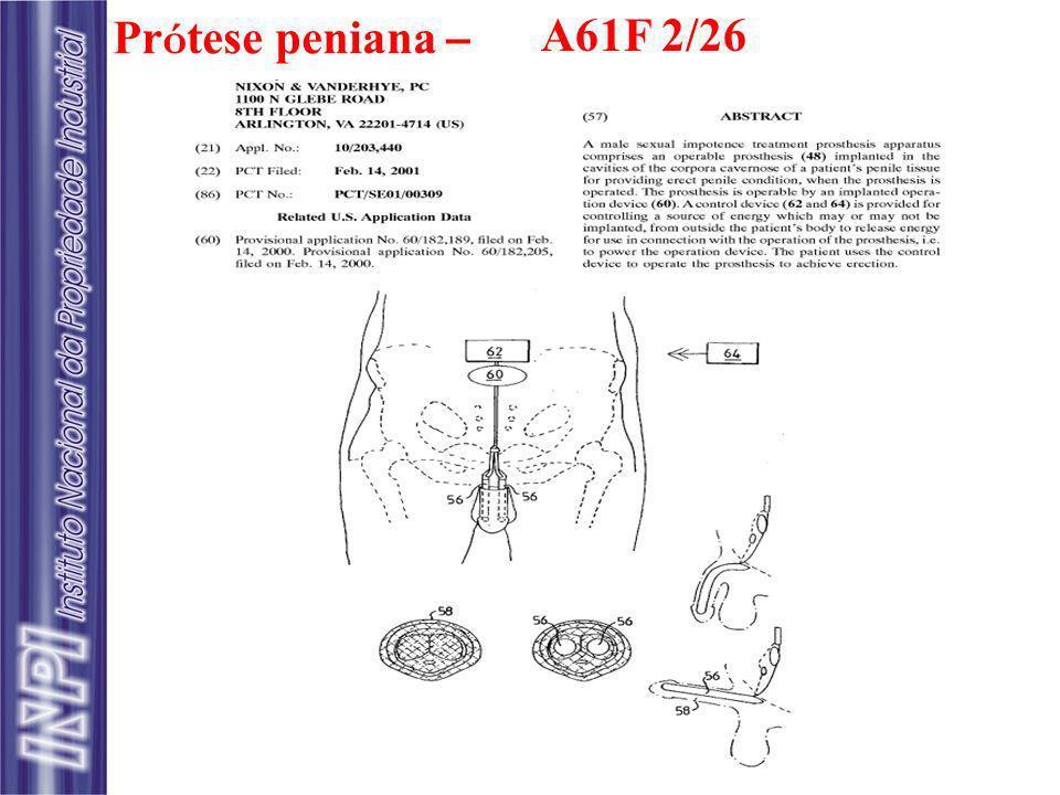 A61F 2/26 Prótese peniana –