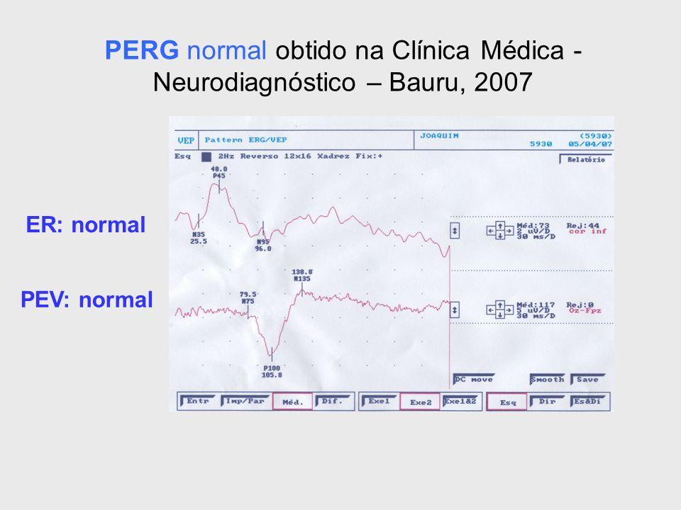 PERG normal obtido na Clínica Médica - Neurodiagnóstico – Bauru, 2007