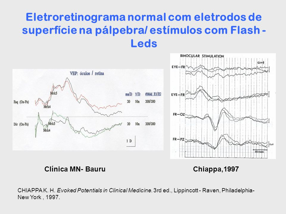 Eletroretinograma normal com eletrodos de superfície na pálpebra/ estímulos com Flash - Leds