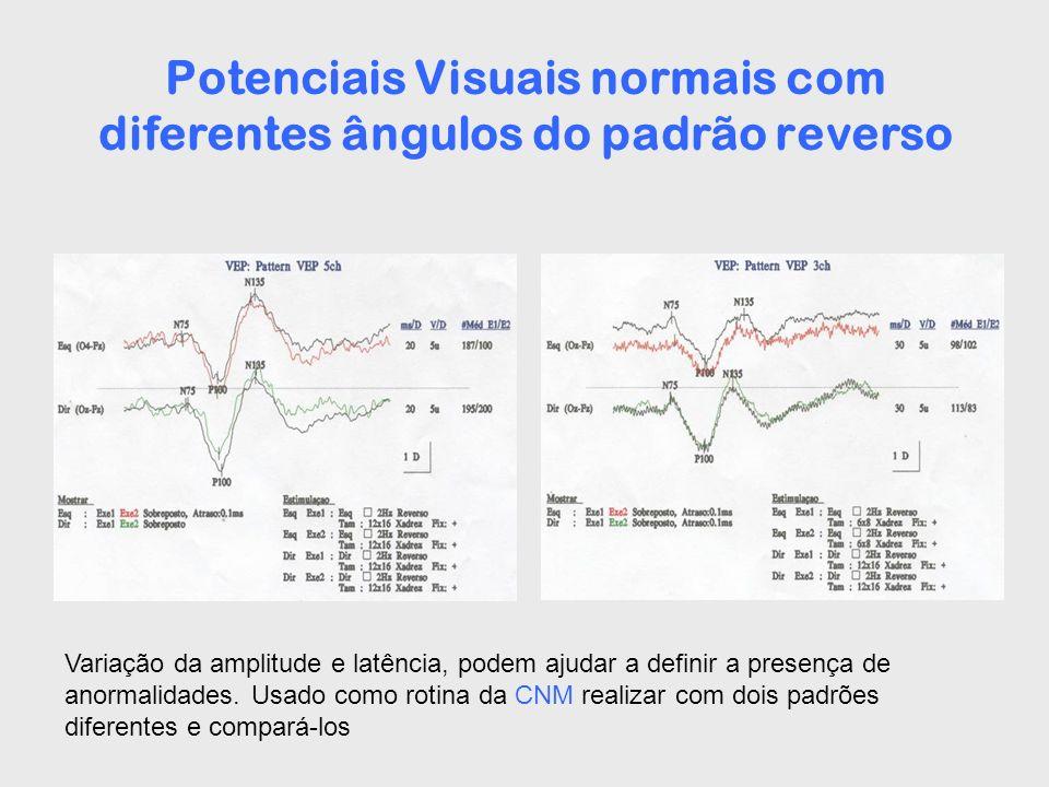 Potenciais Visuais normais com diferentes ângulos do padrão reverso
