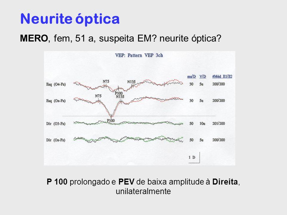 P 100 prolongado e PEV de baixa amplitude à Direita, unilateralmente