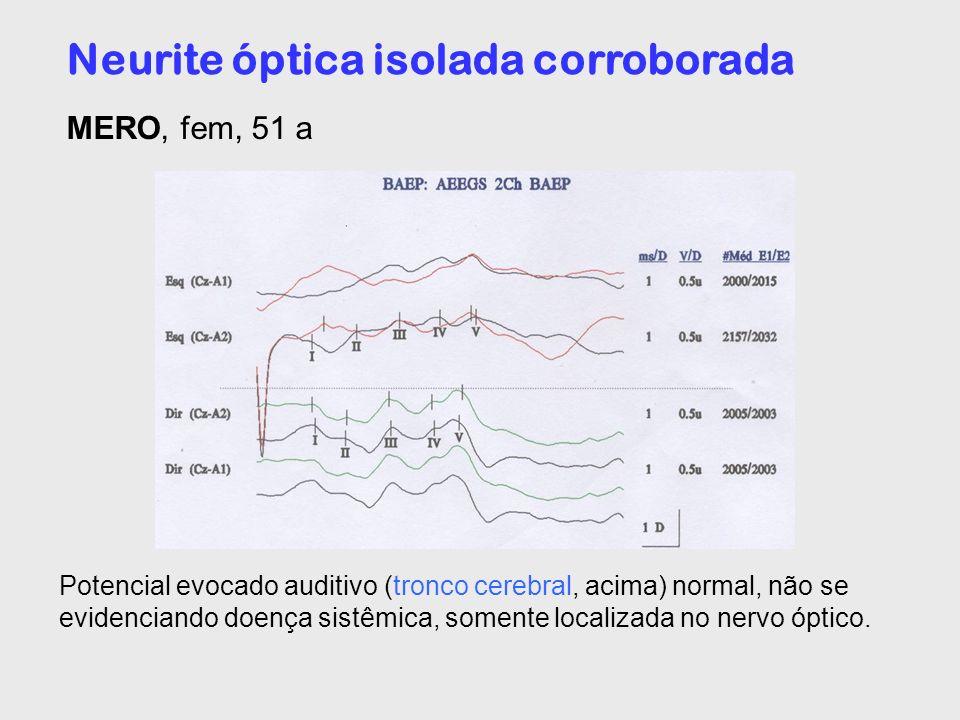 Neurite óptica isolada corroborada