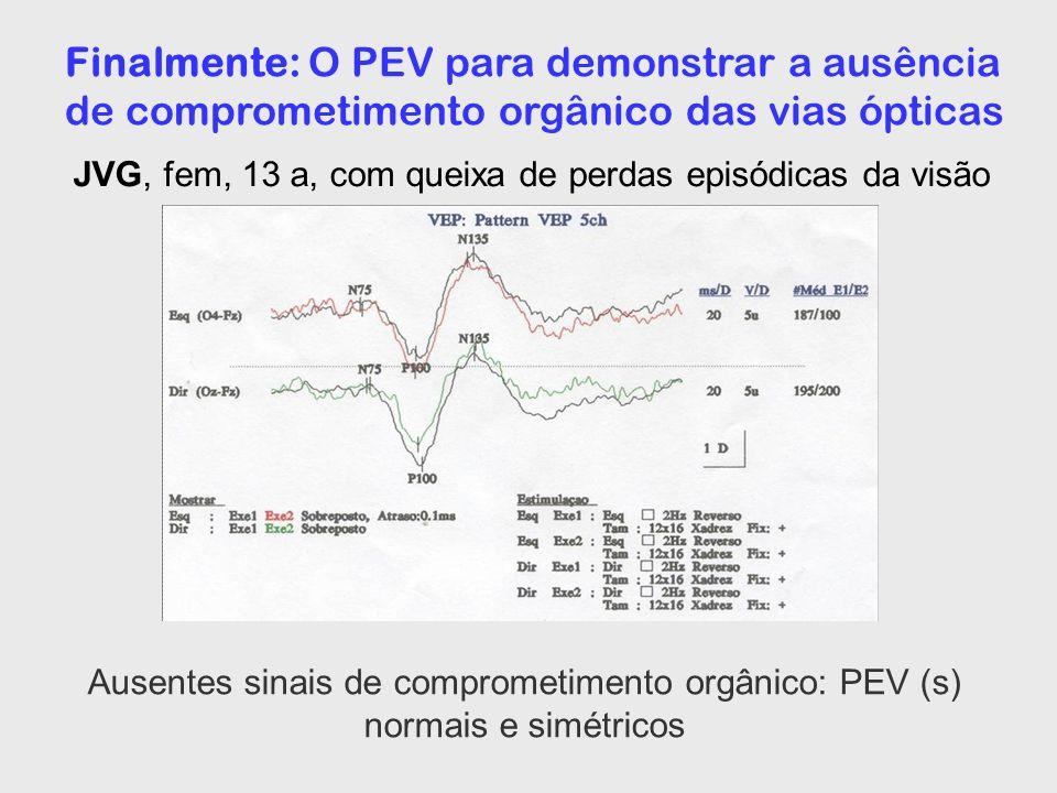 Finalmente: O PEV para demonstrar a ausência de comprometimento orgânico das vias ópticas