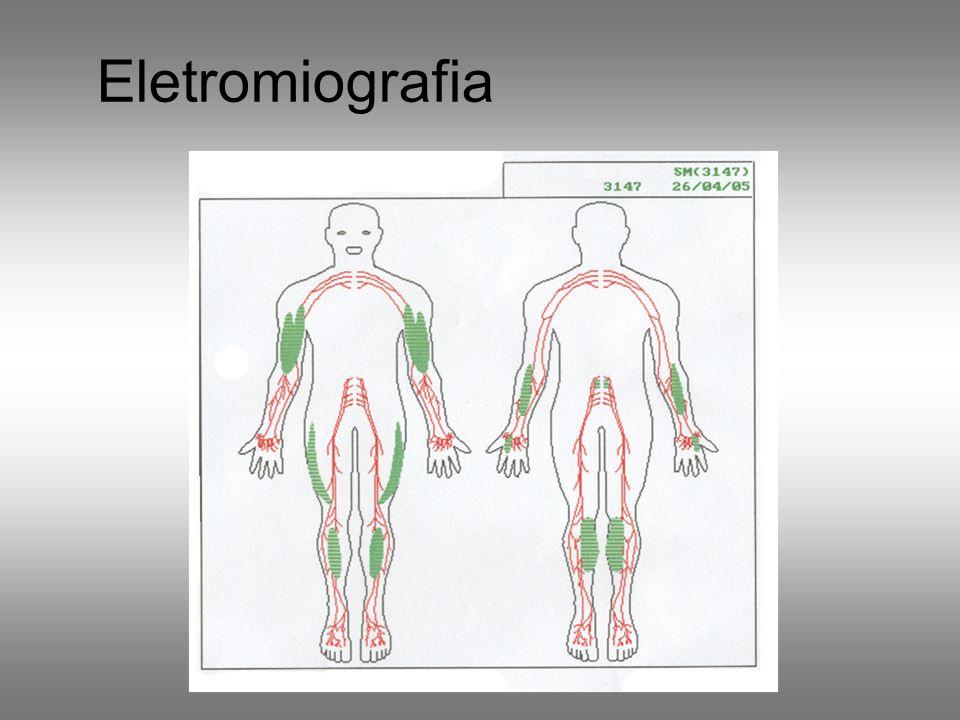 Eletromiografia