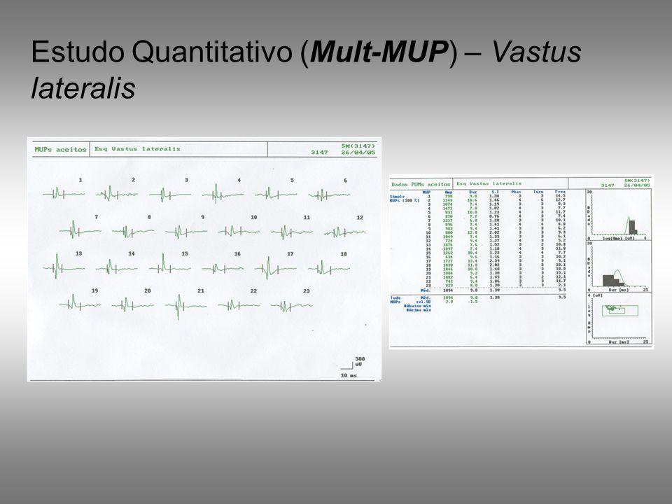 Estudo Quantitativo (Mult-MUP) – Vastus lateralis