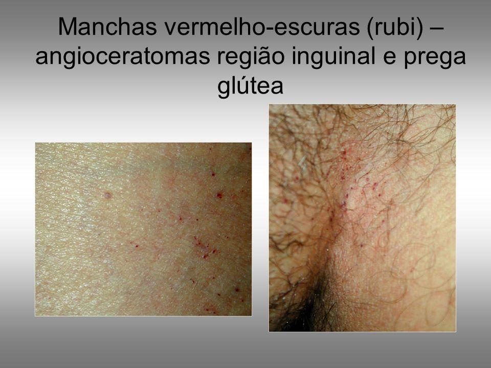 Manchas vermelho-escuras (rubi) – angioceratomas região inguinal e prega glútea