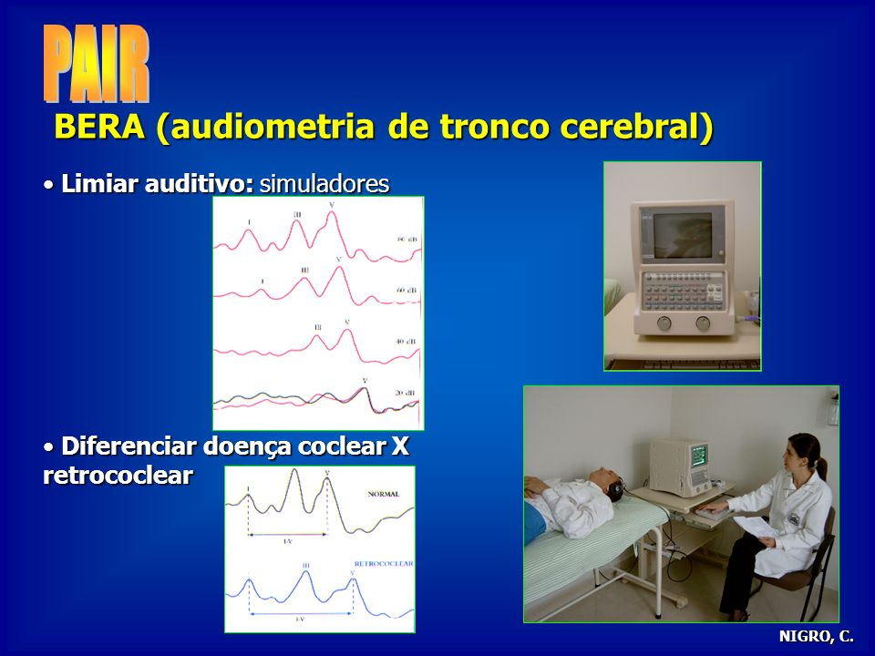 PAIR BERA (audiometria de tronco cerebral)
