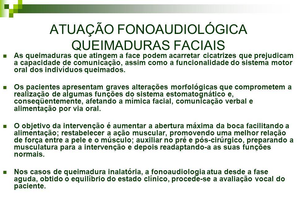 ATUAÇÃO FONOAUDIOLÓGICA QUEIMADURAS FACIAIS