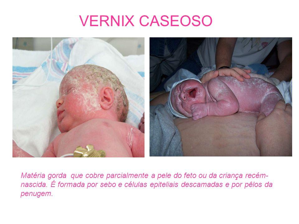VERNIX CASEOSO