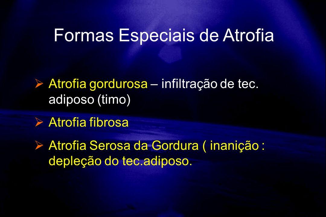 Formas Especiais de Atrofia