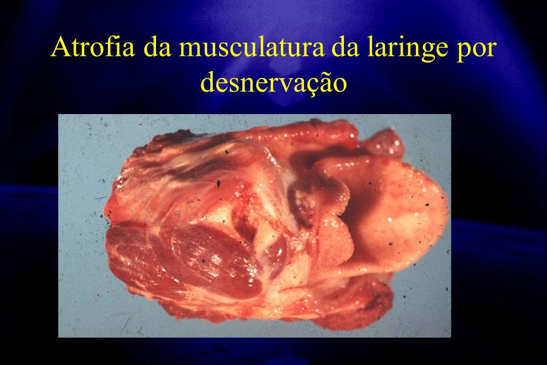 Atrofia da musculatura da laringe por desnervação