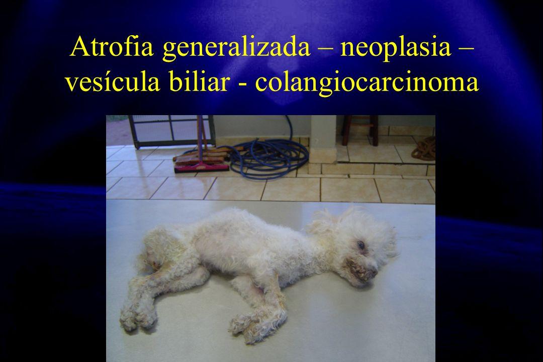 Atrofia generalizada – neoplasia –vesícula biliar - colangiocarcinoma