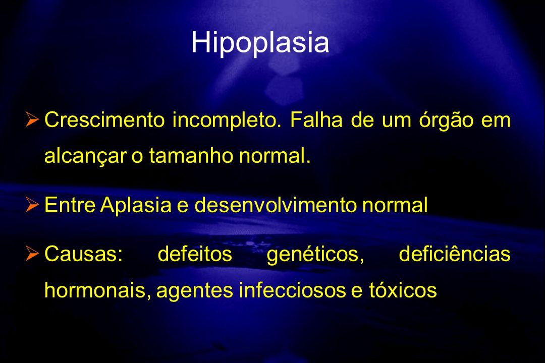 Hipoplasia Crescimento incompleto. Falha de um órgão em alcançar o tamanho normal. Entre Aplasia e desenvolvimento normal.