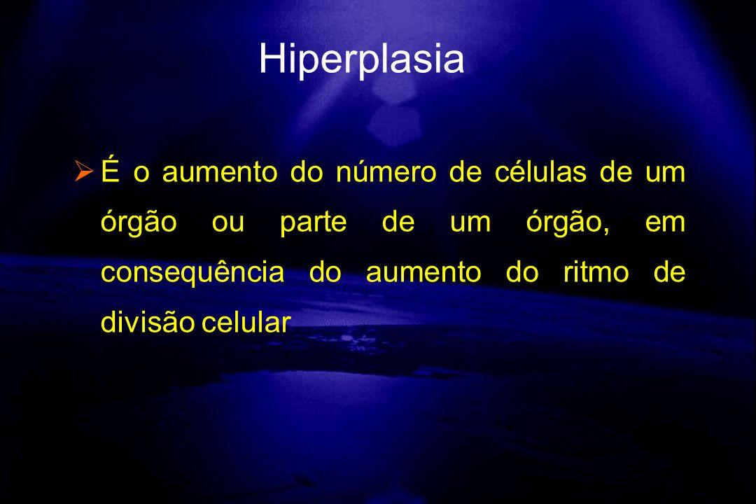 Hiperplasia É o aumento do número de células de um órgão ou parte de um órgão, em consequência do aumento do ritmo de divisão celular.
