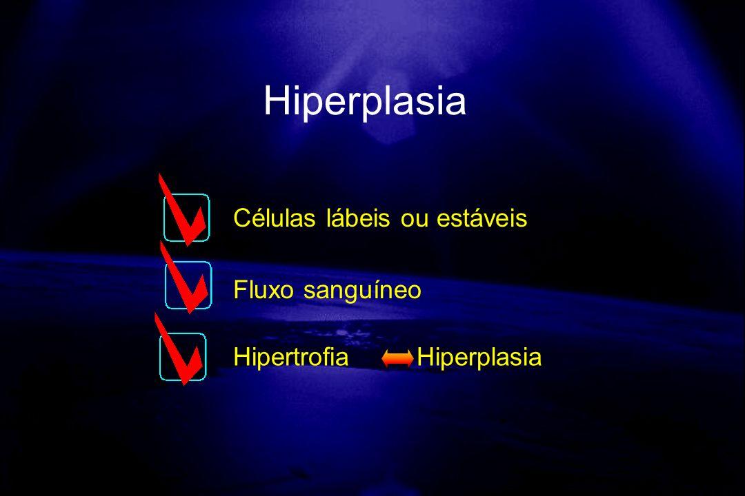 Hiperplasia Células lábeis ou estáveis Fluxo sanguíneo