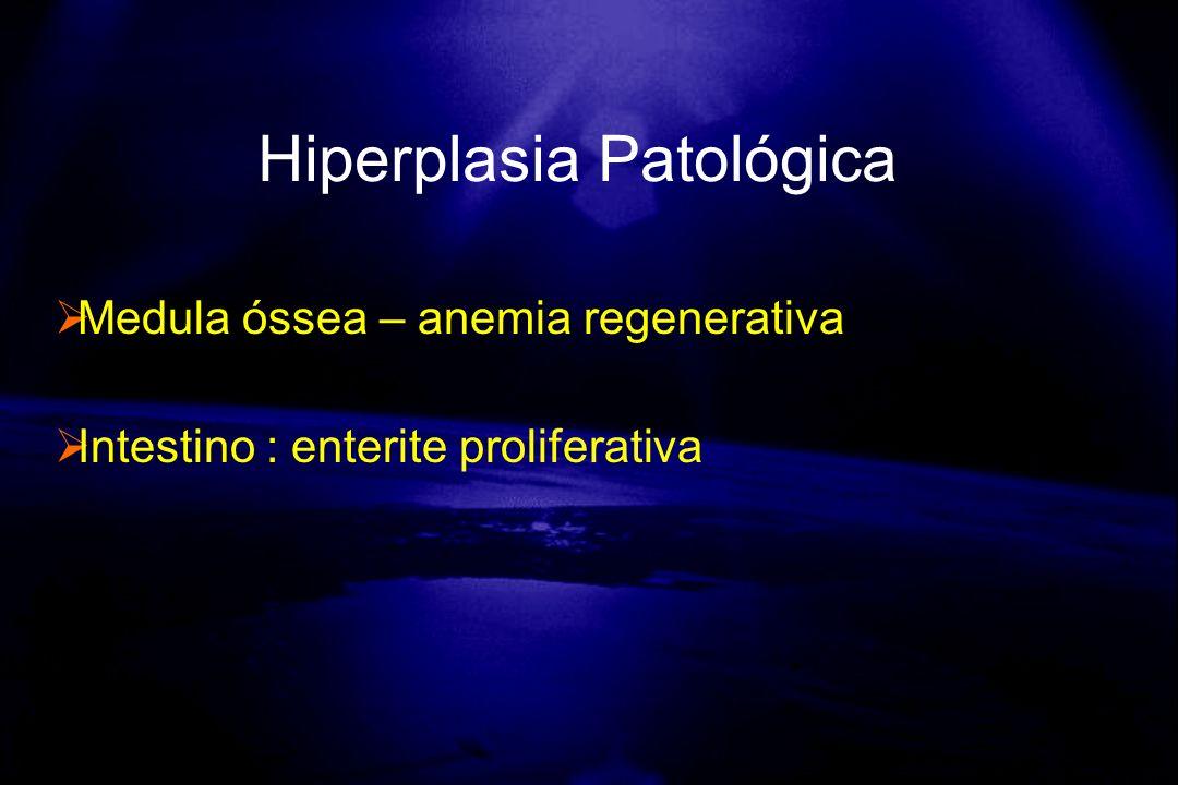 Hiperplasia Patológica