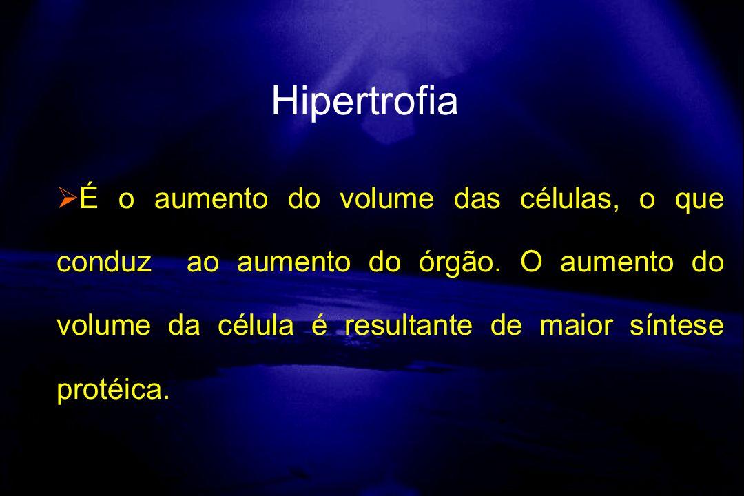 Hipertrofia