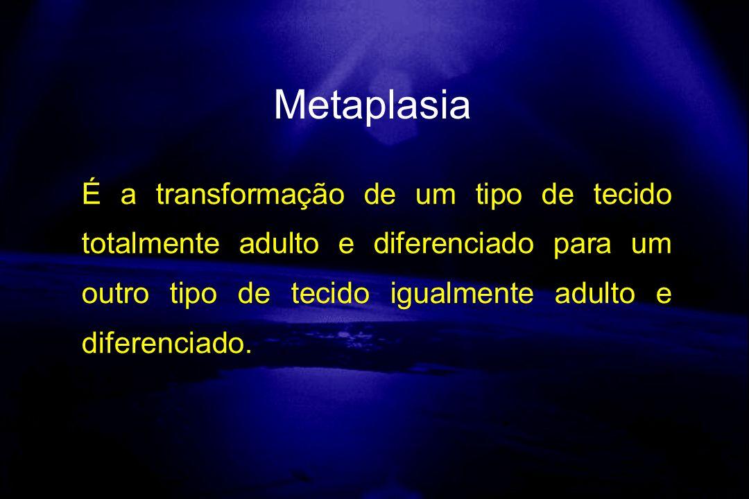 Metaplasia É a transformação de um tipo de tecido totalmente adulto e diferenciado para um outro tipo de tecido igualmente adulto e diferenciado.