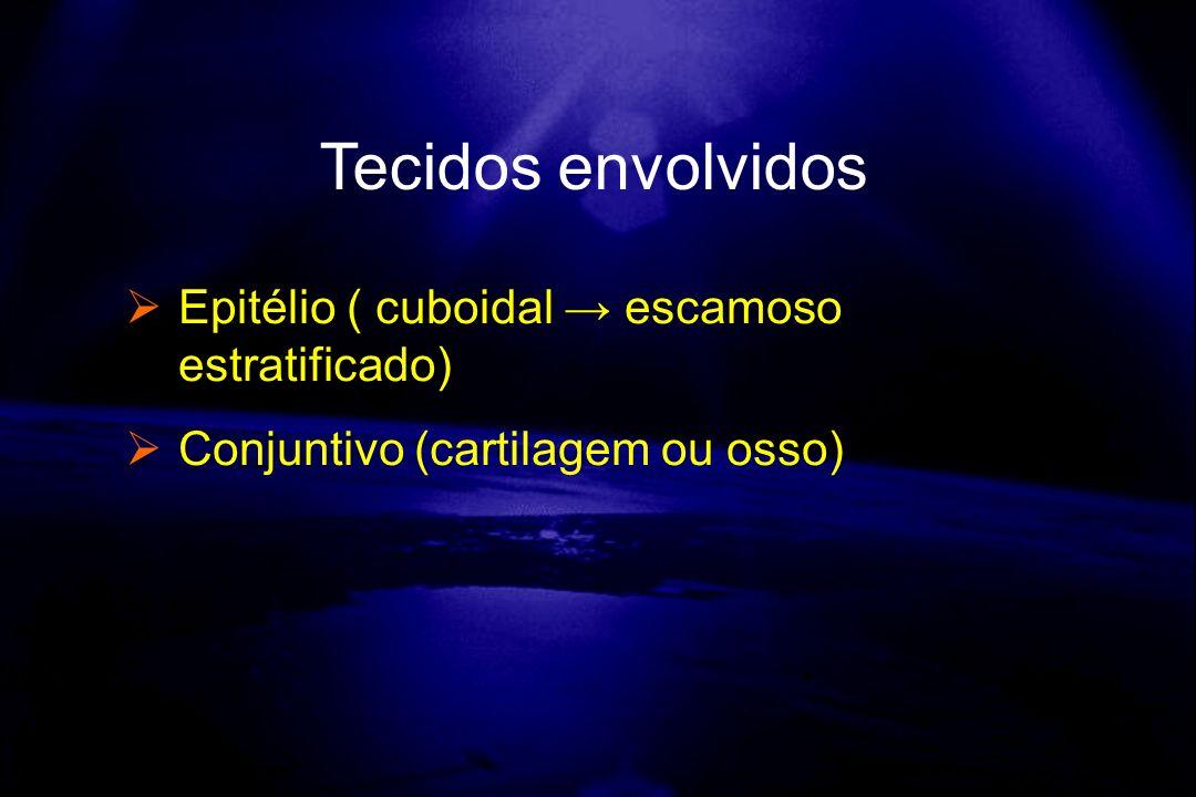 Tecidos envolvidos Epitélio ( cuboidal → escamoso estratificado)