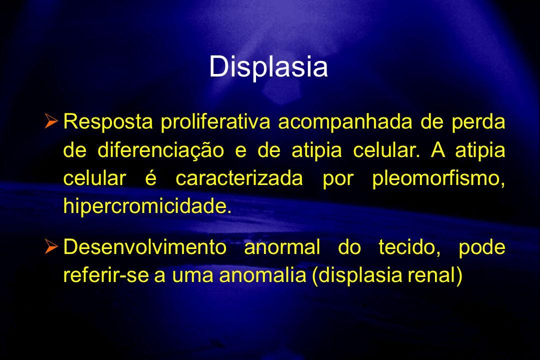Displasia