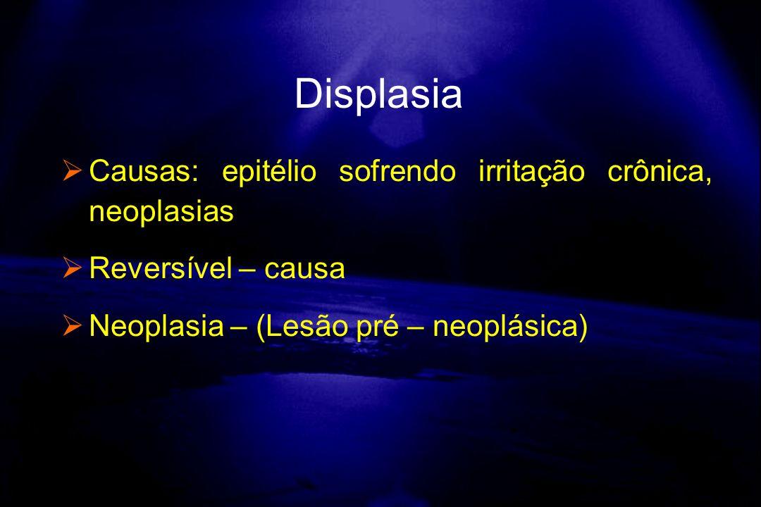 Displasia Causas: epitélio sofrendo irritação crônica, neoplasias