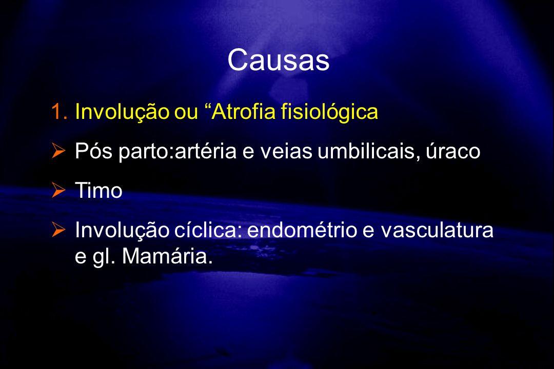 Causas Involução ou Atrofia fisiológica