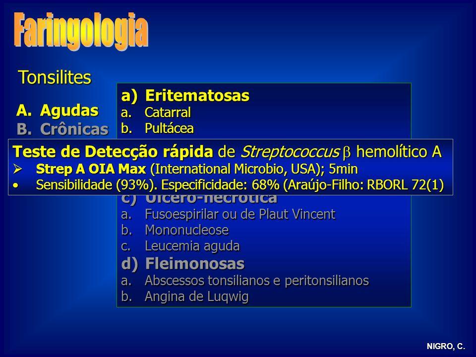 Faringologia Tonsilites Eritematosas Agudas Crônicas Pseudomembranosa