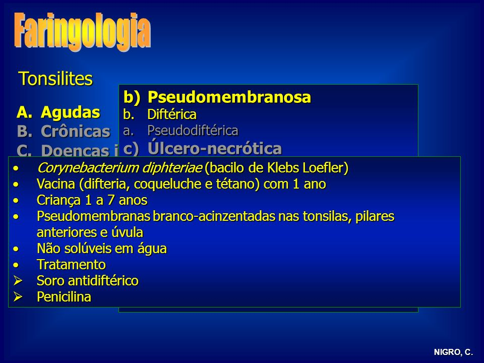 Faringologia Tonsilites Pseudomembranosa Agudas Crônicas