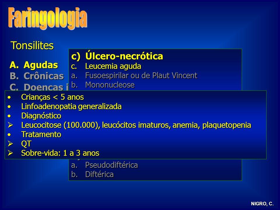 Faringologia Tonsilites Úlcero-necrótica Agudas Crônicas