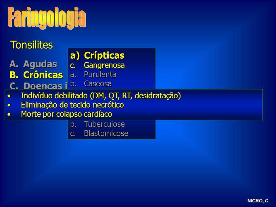 Faringologia Tonsilites Crípticas Agudas Crônicas Doenças infecciosas
