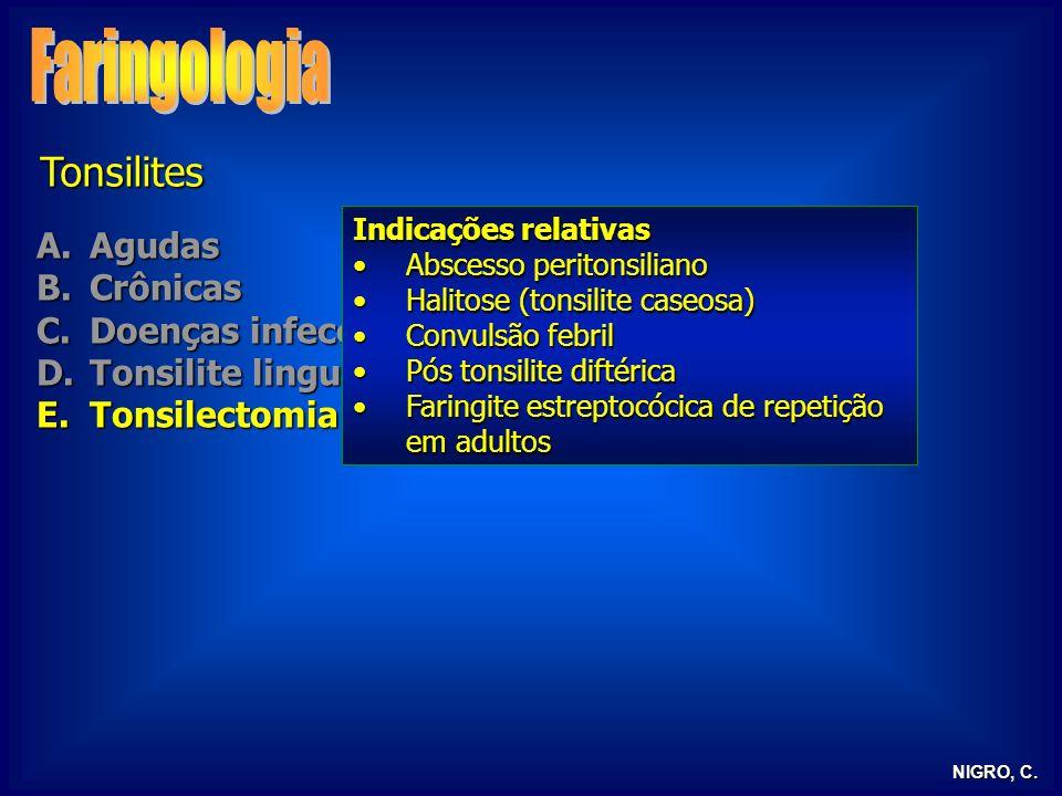 Faringologia Tonsilites Agudas Crônicas Doenças infecciosas