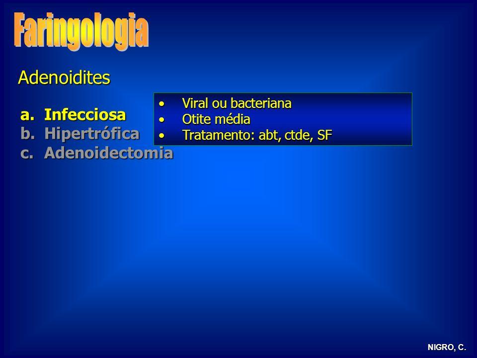 Faringologia Adenoidites Infecciosa Hipertrófica Adenoidectomia