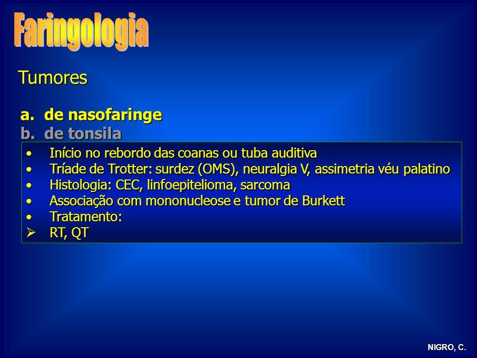 Faringologia Tumores de nasofaringe de tonsila