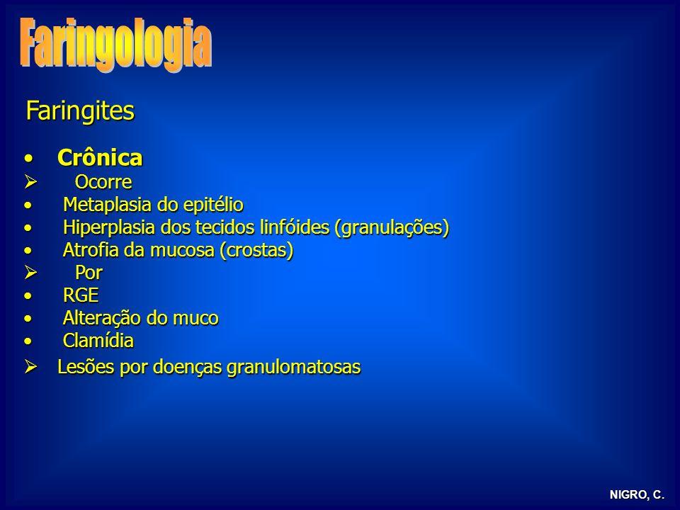 Faringologia Faringites Crônica Ocorre Metaplasia do epitélio